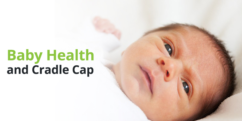 Baby Health and Cradle Cap