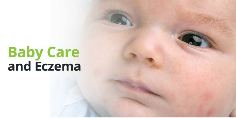 Baby Care and Eczema