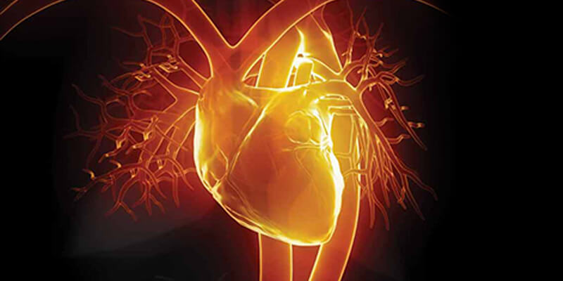 Understanding Cardiac Catheterization
